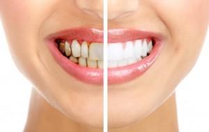הלבנת שיניים תוך שעה אחת